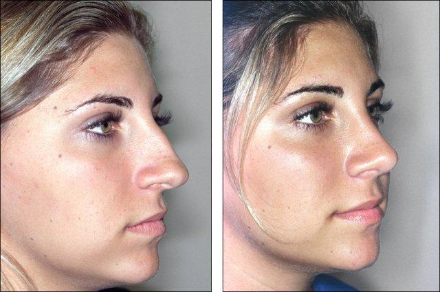 näsoperation