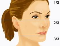 En ansiktslyftning behandlar ansiktets nedre 2/3
