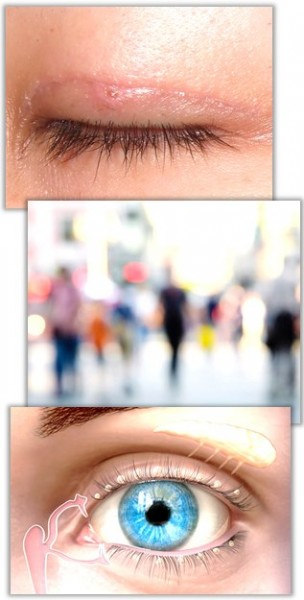 Ärr, dimsyn och torra ögon förekommer efter en ögonlocksoperation.