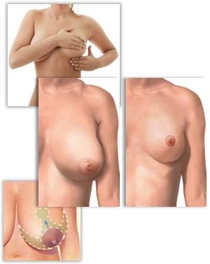 Din guide till bröstförminskning