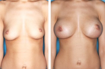 Bilder före & efter bröstförstoring