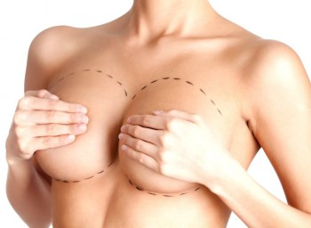 Implantatens form formar brösten