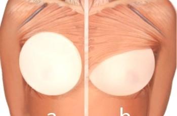 mammografi med silikonbröst