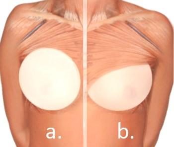 Placering av bröstimplantaten görs antingen bakom eller framför bröstmuskeln