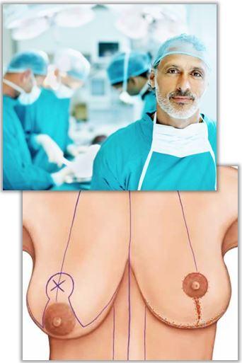 Operation vid bröstförminskning