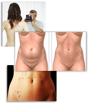 Om bukplastik och graviditet, BMI, viktnedgång, putmage, hud