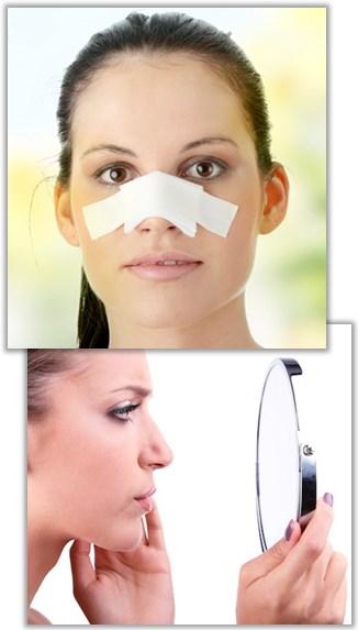 sola efter näsoperation