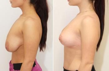Bilder före & efter bröstlyft