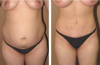 operera bort lös hud på magen