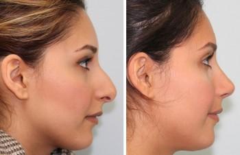 Se före- och efterbilder av plastikkirurgi