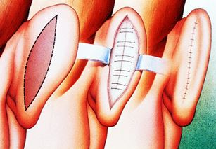Operation av utstående öron