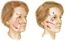 Metoder för ansiktslyft