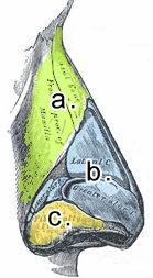 Vid en näsplastik åtgärdas a. näsben, b. näsbrosket och c. mjukdelar