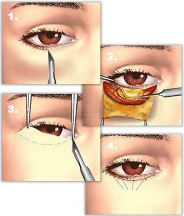 Nedre konjunktival ögonlocksplastik