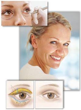 Guide till ögonlocksplastik
