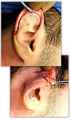 Öronförminskning