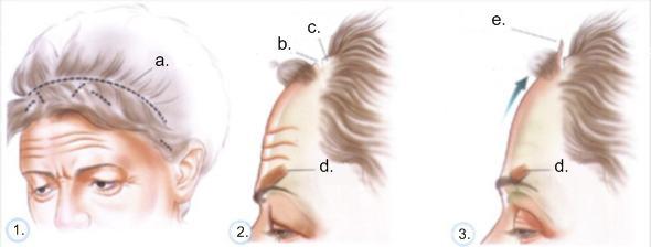 a.) snittytor b.) snitt c.) håret trimmas d.) ögonbrynsmuskeln e.) pannhuden lyfts