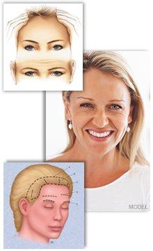 Guide till ögonbrynslyft