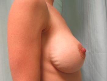 Rippling - vågformiga ojämnheter i huden ovanför implantaten