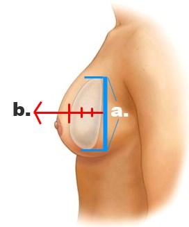 Bröstimplantat med olika projektion