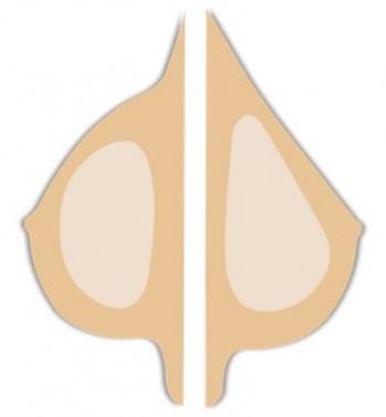 Jämförelse mellan ett runt och ett droppformat bröstimplantat