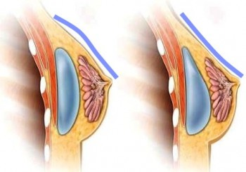 Notera hur det runda implantatet fyller ut överdelen av bröstet medan det anatomiska får en mer naturlig linje.