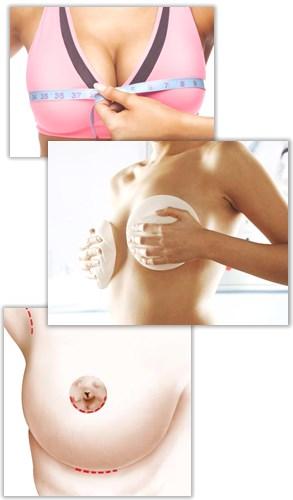 bröstförstoring stora implantat