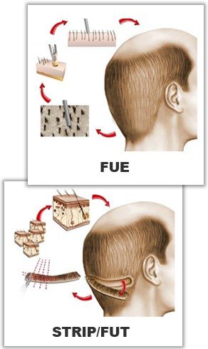 FUE & STRIP - metoder för hårtransplantation