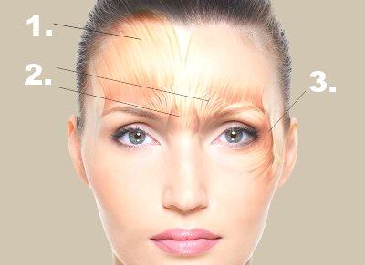 Arga rynkan, rynkor i pannan och skrattrynkor behandlas med botox.