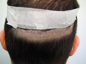 Svullnad efter hårtransplantation