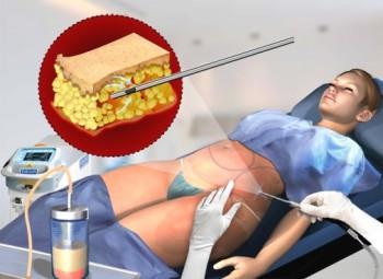Tillverkarens rekommendation är att max 250 cc (2,5 dl) fett avlägsnas per behandlingsområde och tillfälle