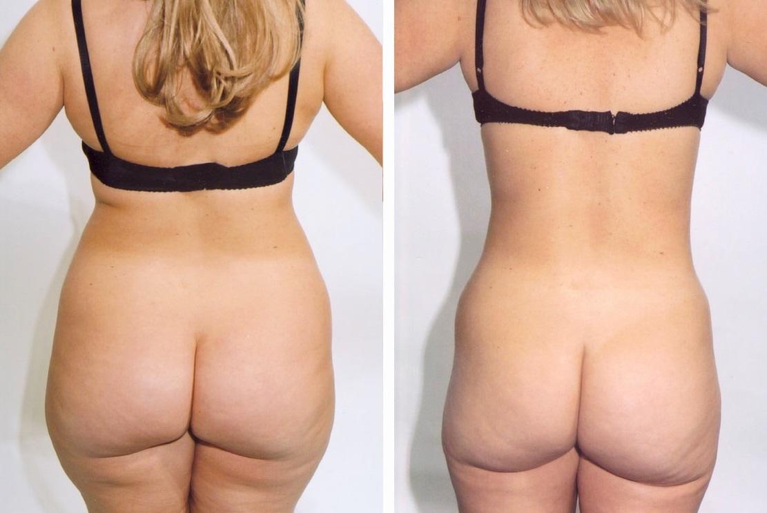 resultat efter fettsugning