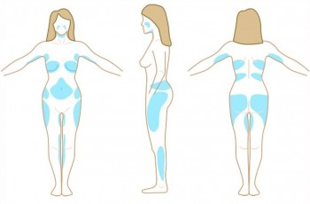 Lämpliga kandidater och behandlingsområden för fettsugning
