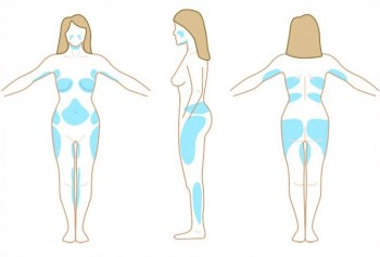 Områden för fettsugning