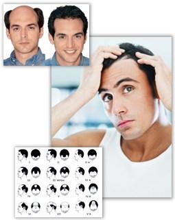 Kvinnligt och manligt hårafall