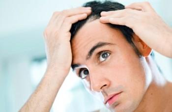 Behandling av håravfall