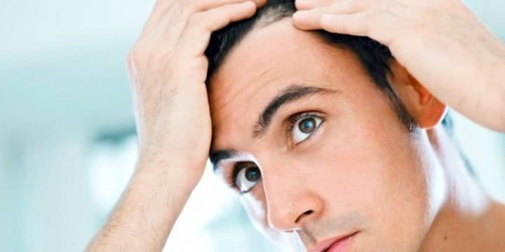 Allt om håravfall