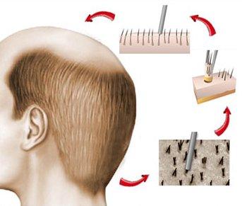 Hårtransplantation med FUE (FUT)-metoden