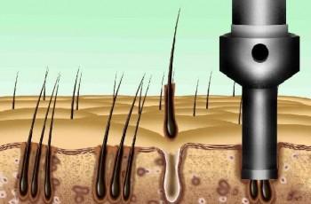 De två metoderna för hårtransplantation -FUE & STRIP