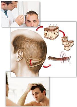 Guide till hårtransplantation