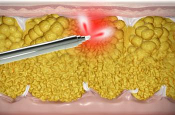 Hudåtstramning vid Smart Lipo laserfettsugning