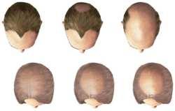 Manligt håravfall (androgen alopeci) kan öven drabba kvinnor
