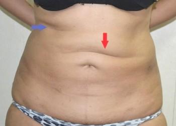 efter fettsugning mage