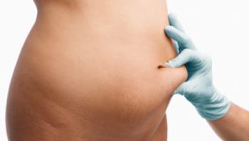 Risken ökar med mängden fett som avlägsnas