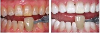 tandblekning hos tandläkare pris