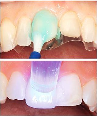 Plastfasader byggs upp av plast direkt på tanden