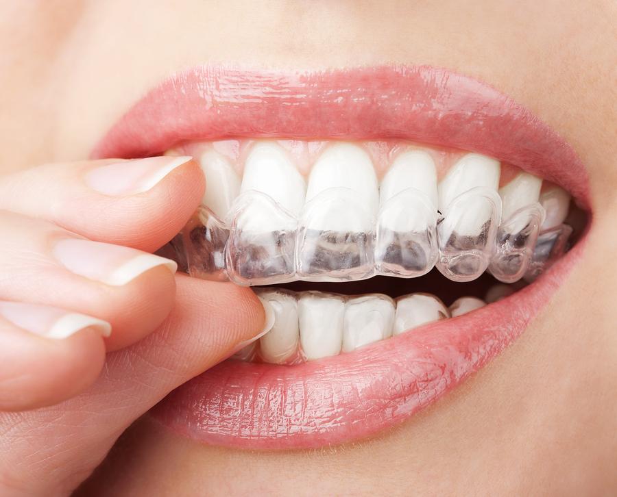 ilningar efter tandblekning