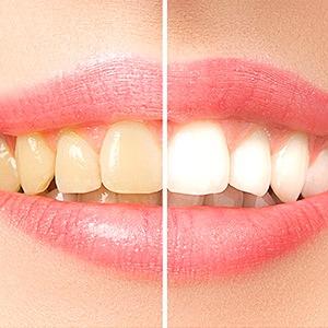 Metoder för att bleka tänderna
