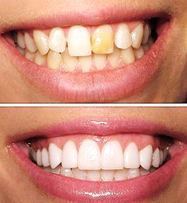 Behandling av missfärgade och ojämna tänder