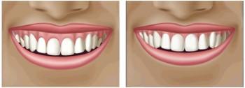 tillbakadraget tandkött behandling